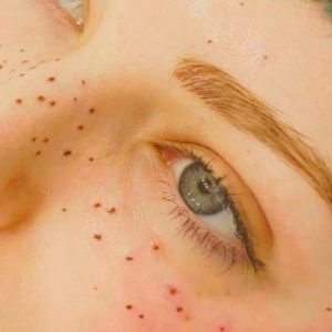 Are freckle tattoos the latest beauty trend?