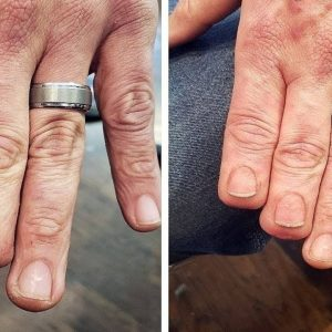 People Asked To Cover Up Their Scars And Birthmarks And Tattoo Artists Nailed It
